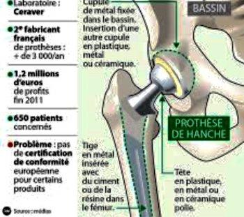 Prothèse de hanche Ceraver
