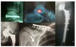 Prise en charge des fractures à la clinique Montagard